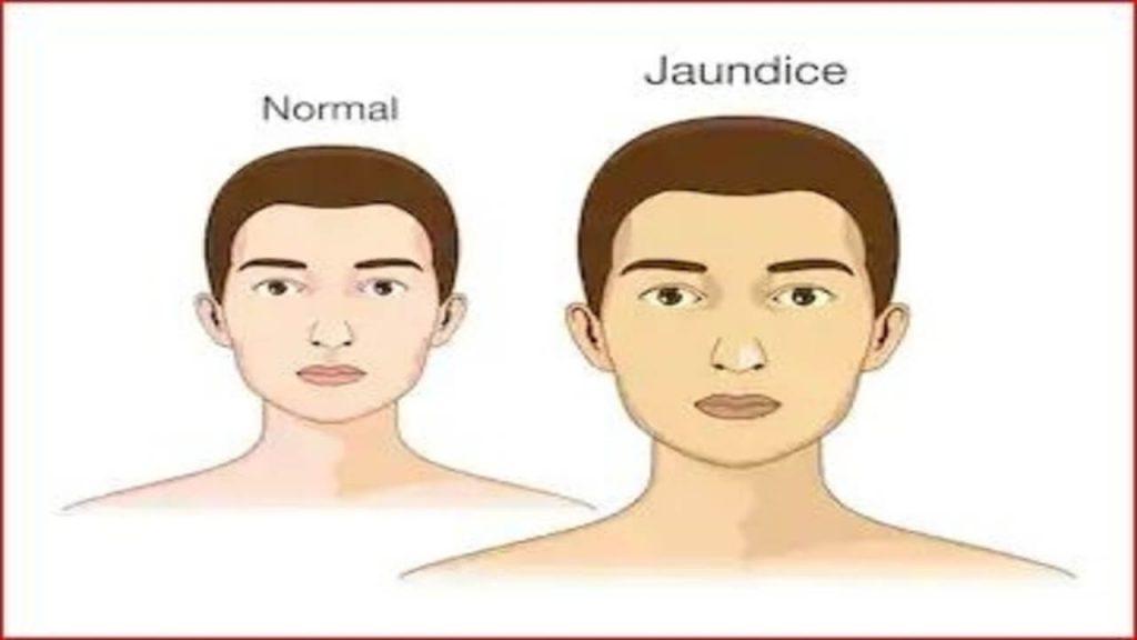 jaundice: normal vs jaundice people skin color