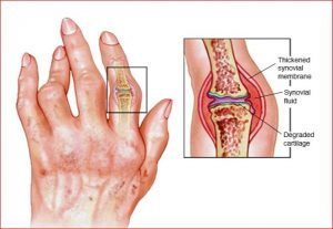 Arthritis symptoms causes and precaution with home remedies